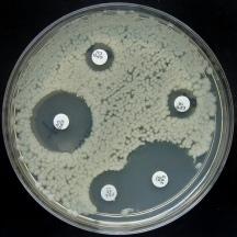 Een gevoeligheidsbepaling geeft aan voor welke antibiotica een bacterie gevoelig is