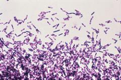 De bacterie clostridium difficile onder de microscoop